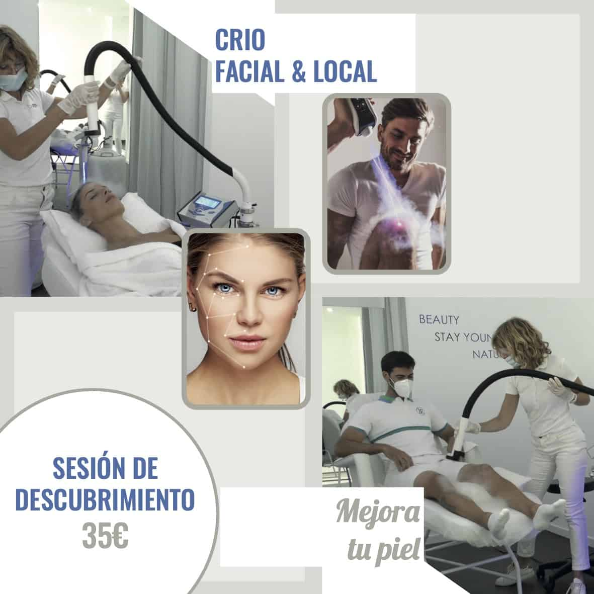 Crioterapia-Facial-Local